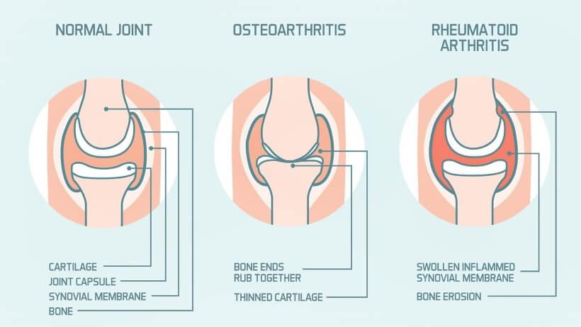 De twee gezichten van artritis